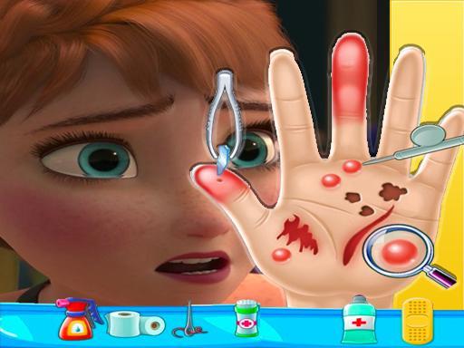 Jogo Anna Frozen Hand Doctor Fun